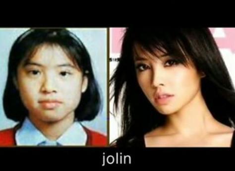 Jolin Tsai before n after surgery | Flickr - Photo Sharing!