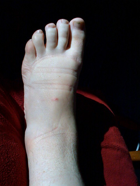 Pitiful swollen, sprained ankle