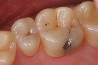 caria dentara este invizibila la inceput