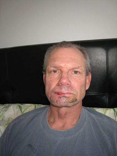 jeff's accident IMG_0972