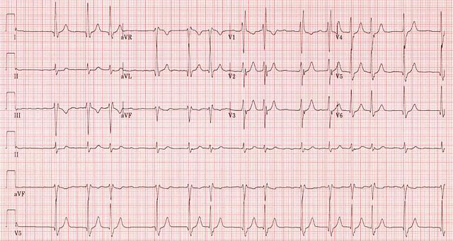 Ventricular Fibrillation Ekg Atrial Fibrillation Ekg Strip