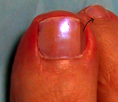 to be removed during a nail removal procedure (partial nail avulsion)
