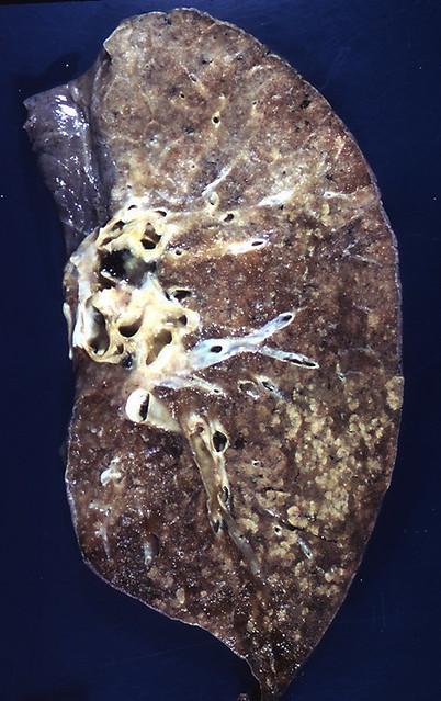 Bronchopneumonia Explore Pulmonary Pathology S Photos On