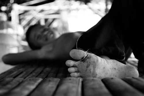 monochrome children foot blackwhite george kid child philippines mateo pinoy gregorio firstaid thehousekeeper flickristasindios litratistakami arkitekturangpinoy photokalye georgemateo ikawaypinoy indioshamon56