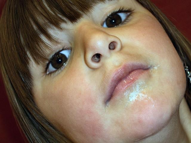 фото корь на лице