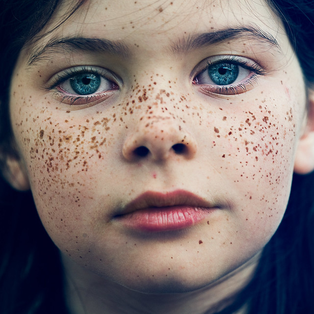 15 Fantastic Freckle Photos