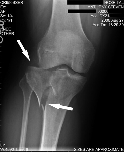 Fracture - Tibial Plateau | Flickr - Photo Sharing!