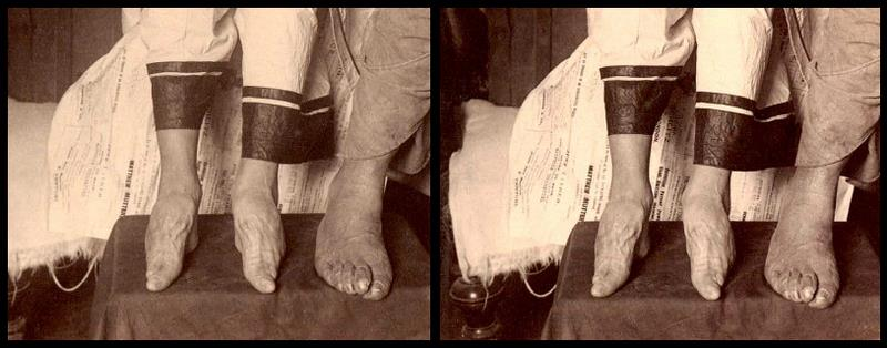 Chinese foot binding research paper