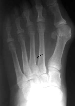 Foot Stress Fracture | Flickr - Photo Sharing!