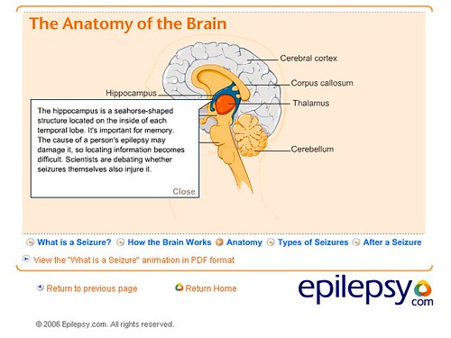 Brain - The Hippocampus - Epilepsy