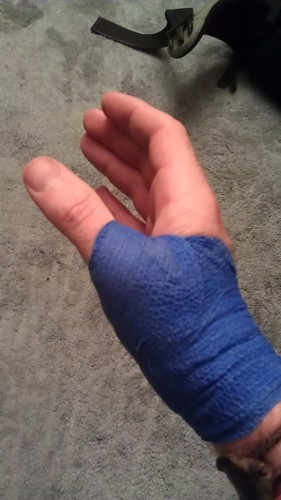 A broken thumb wrapped in a purple bandage
