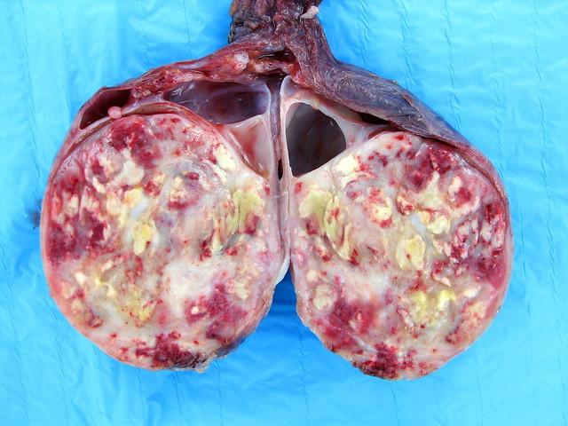 atrofia testicular esteroides