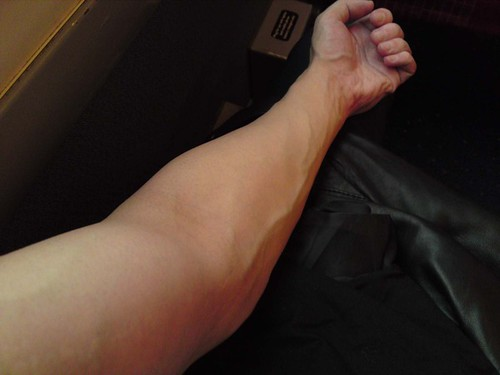 Years of heavy weight exercises (gym) are making my veins ...