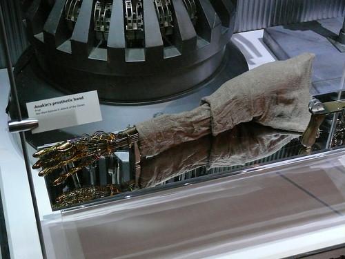 Anakin's Mechanical Hand