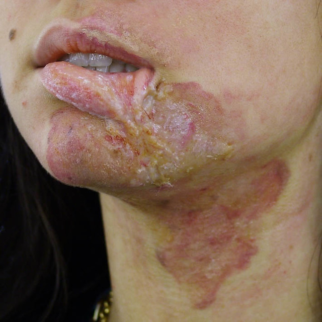 Healed acid burn makeup | Flickr - Photo Sharing!
