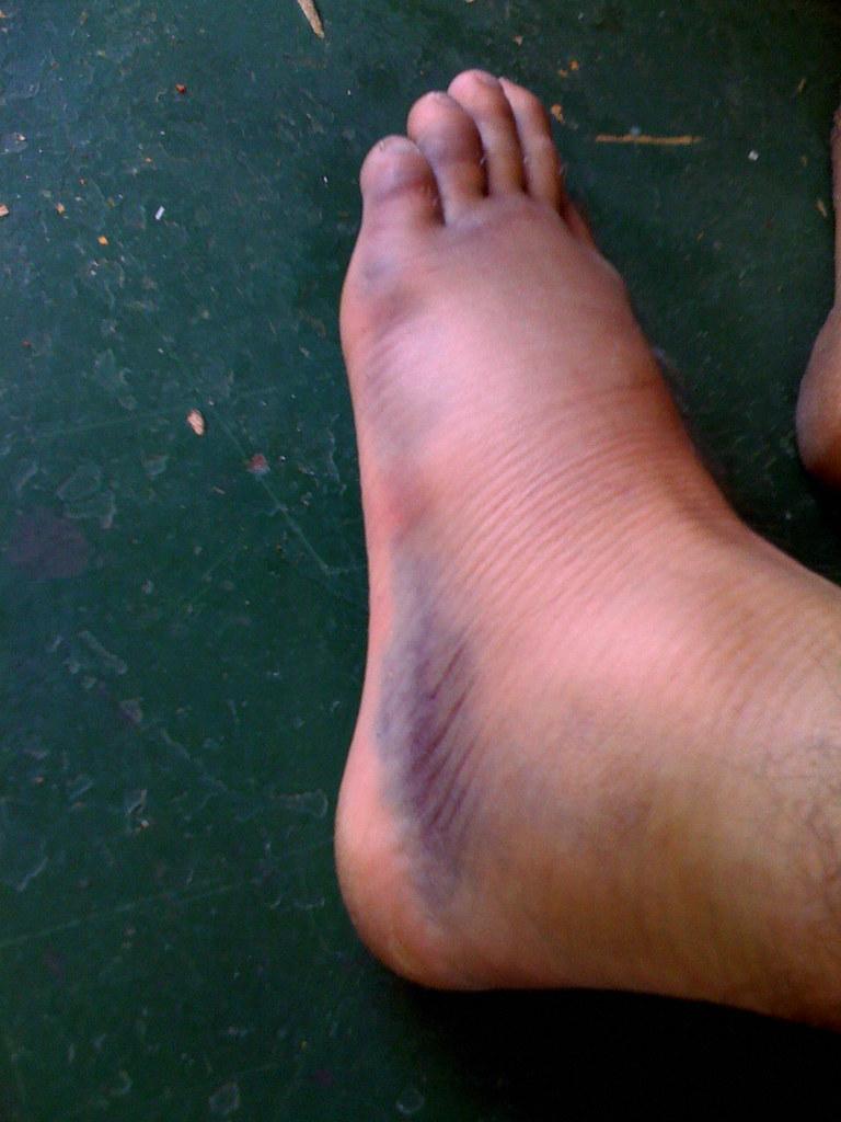 swollen foot - outside