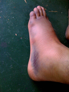 swollen foot - outside
