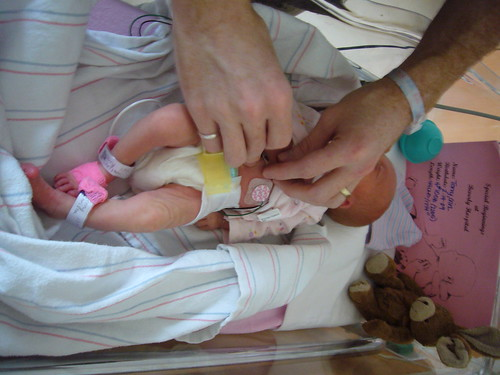 preemies prematurity