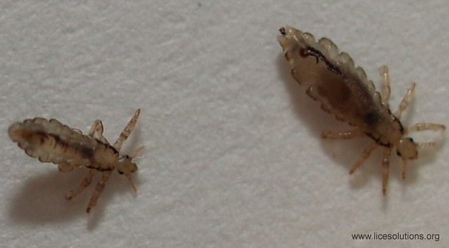 Head Lice - Louse with Third Stage Nymph