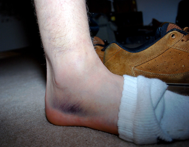 Hurt Ankle =( | Flickr - Photo Sharing!