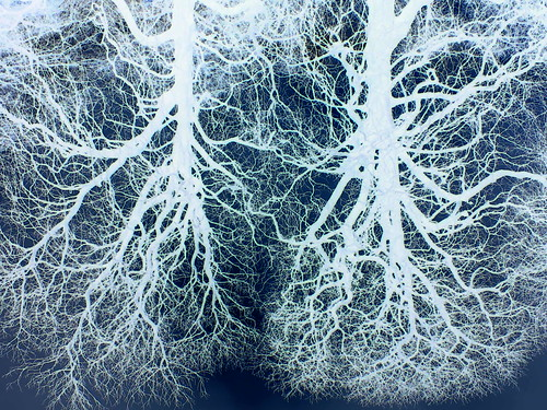 Two trees  Lungs x-ray by intothewildone