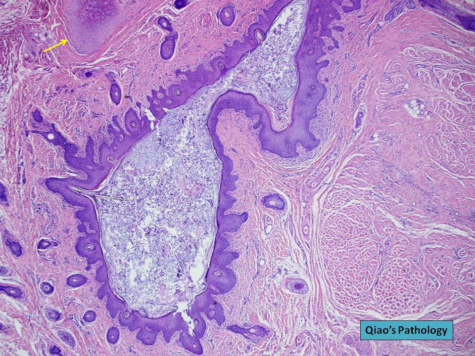 Branchial cysts in adults