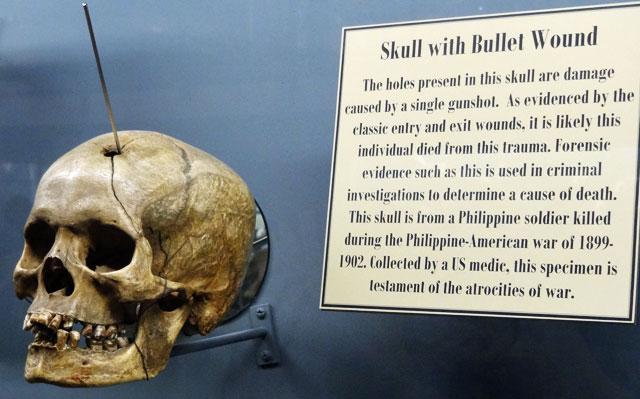 bullet-wound-skull