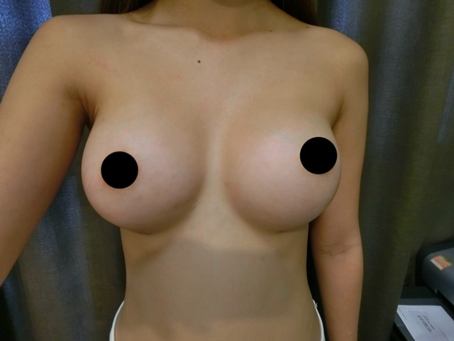 Nikki Kobe's Breast Surgery