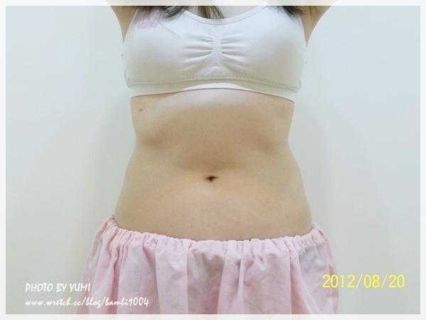 標靶震波,溶脂,,減肥瘦身,產後瘦身,體雕,瘦身靠的就是它,瘦身最輕鬆方法,瘦身明星推薦,瘦身必瘦秘笈, 瘦身,瘦身產品,冬天瘦身,冬季瘦身,瘦身方法,,快速瘦身, 蝴蝶袖,瘦小腹,如何瘦小腹,瘦小腹的方法,瘦小腹運動,瘦小腹最快的方法,瘦大腿,如何瘦大腿,瘦大腿最快的方法,瘦大腿內側,怎麼瘦大腿,瘦大腿最有效的方法,瘦大腿運動,瘦大腿的方法