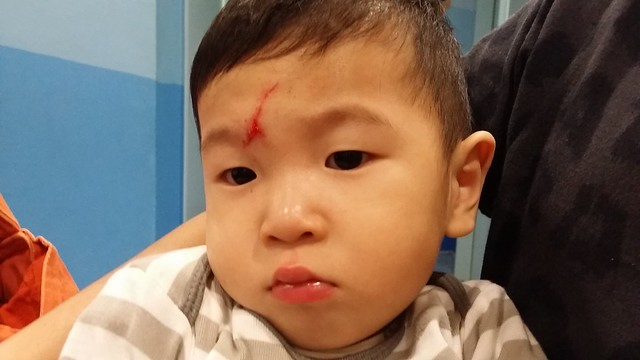 Jerome suffered a huge gash across his forehead when he fell from the bed.