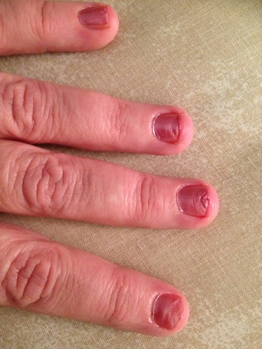 Sore nails after removing gel nails – Great photo blog about ...