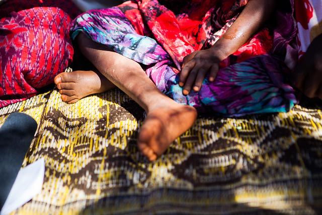 Legs of Ayan Yasin Confirmed Wild Polio Virus (WPV-1) case in Degafur rural village