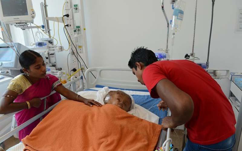 niña india hidrocefalia