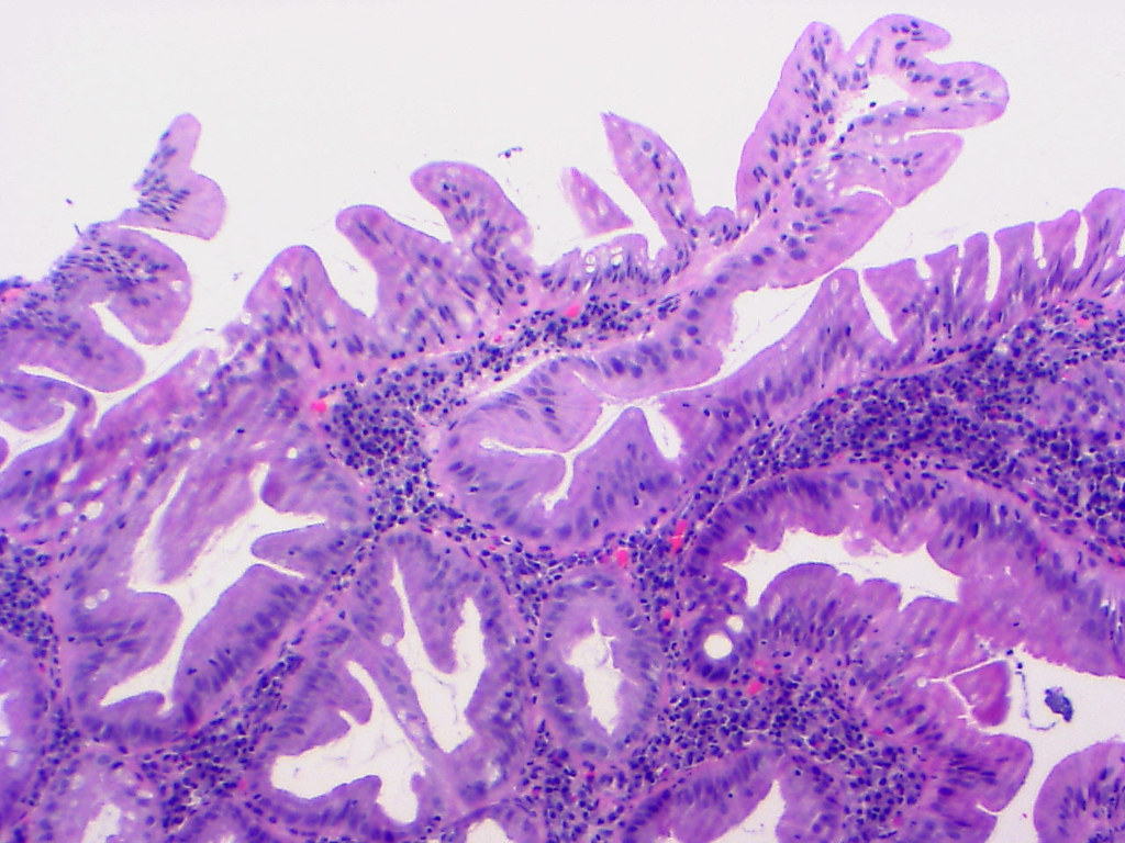 Pathology Outlines - Serrated polyp / adenoma