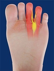 Arthritis In The Ball Of My Foot