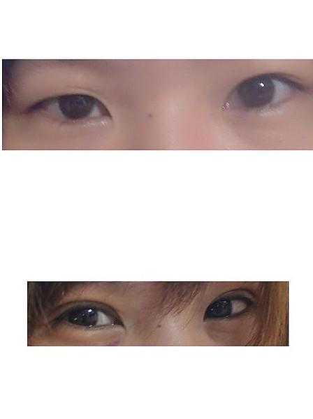 變身|雙眼皮日記♥.術後十一天,這是大總結。