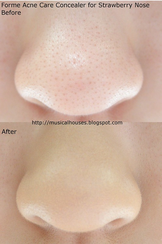 Forme Acne Care Concealer before after