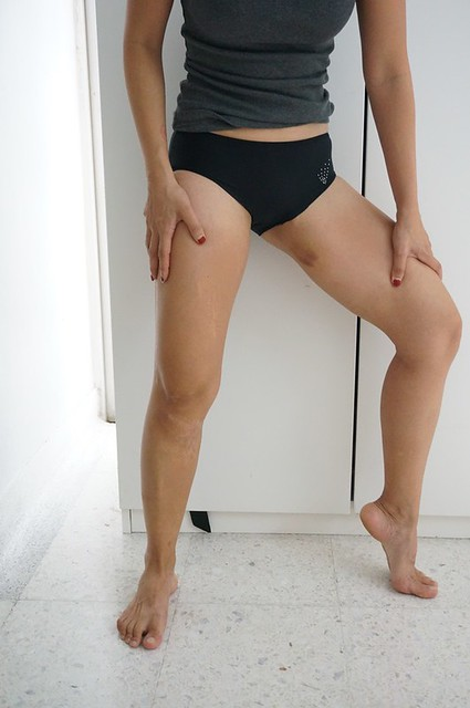 REVIEW Coolsculpting by Clique Clinic - Before and after pictures of Rebecca Saw-001