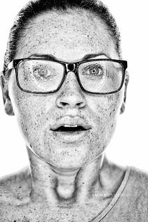 wet freckles