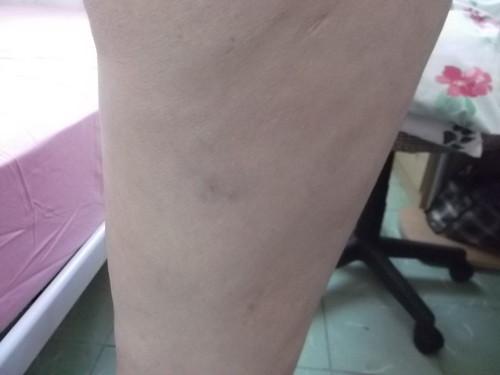Detención_con_violencia_19_nov-golpes_por_el_arrastre