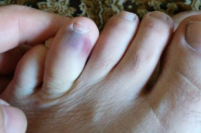 Toe bruise