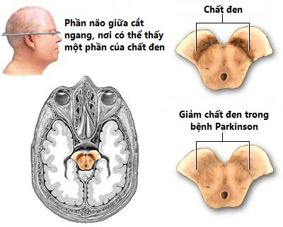 vai-tro-dopamin-voi-benh-parkinson