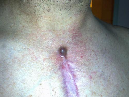 Chest wound