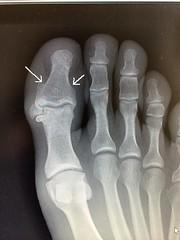 hand(0.0), arm(0.0), tooth(0.0), finger(0.0), leg(0.0), human body(0.0), jaw(0.0), radiography(1.0), medical radiography(1.0), limb(1.0), organ(1.0),