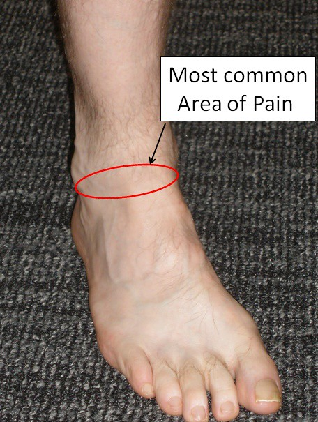 Foot Pain Under Ankle