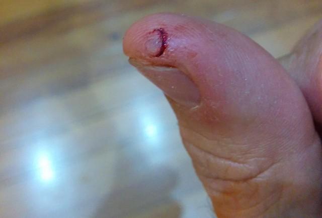 Cut thumb