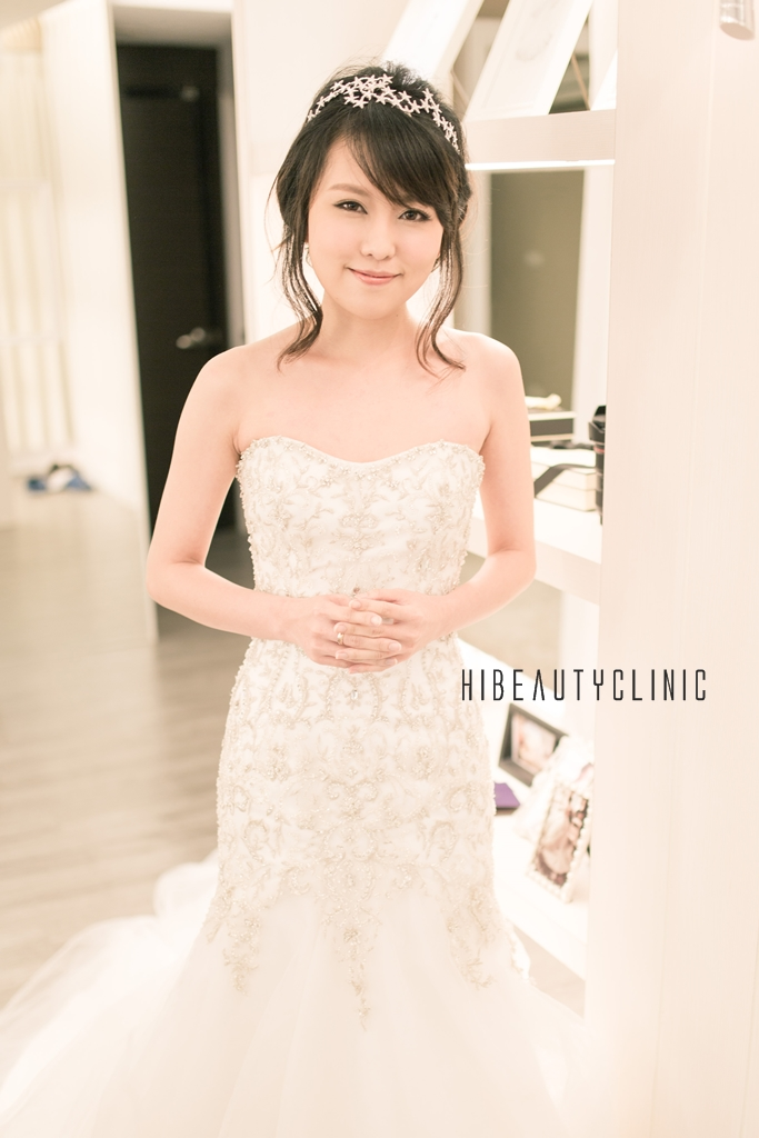 婚戒,結婚,台北結婚禮車,粉餅雷射,埋線拉提,電波拉皮,玻尿酸,肉毒桿菌,墊下巴,下巴,美麗晶華