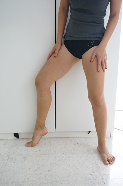 REVIEW Coolsculpting by Clique Clinic - Before and after pictures of Rebecca Saw-002