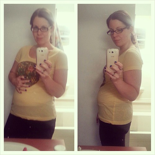 10 days post-op from my hysterectomy (TAH) and appendectomy. I'd make a good pregnant woman. #hysterectomy #surgery