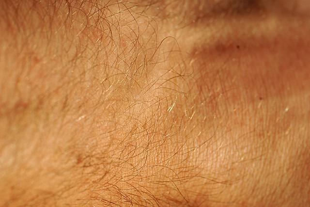 A hairy wrist